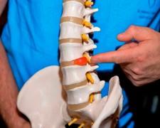 Упражнения Дикуля для спины при грыже поясничного отдела позвоночника