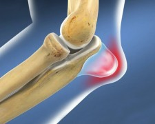 Причины развития воспаления локтевого сустава — чем чревато отсутствие лечения