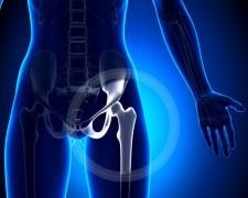 Структурные изменения в проксимальном отделе тазобедренного сустава