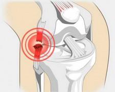 Растяжение связок коленного сустава — последствия при отсутствии лечения