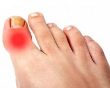 Причины боли в суставе большого пальца на ноге — методы лечения