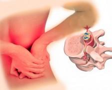 Корешковый синдром поясничного отдела