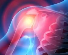 Причины появления субакромиального бурсита плечевого сустава — чем опасно заболевание