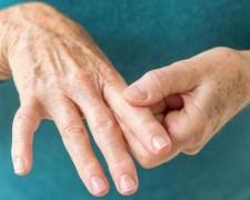Что такое ревматоидный артрит – как бороться с заболеванием, с трудом поддающемуся лечению