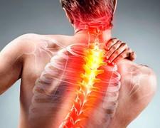 Гимнастика для спины при остеохондрозе — самые эффективные упражнения