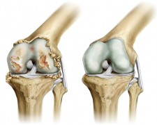 Гонартроз коленного сустава: что это такое, причины и лечение