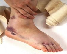 Первая помощь при растяжении связок — осложнения после травмы