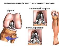 Что делать при разрыве связок коленного сустава: первая помощь и дальнейшее лечение