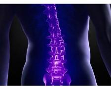 Чем лечить остеохондроз поясничного отдела