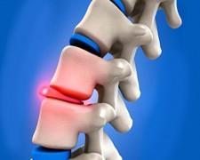 Причины болей сзади справа под ребрами со спины