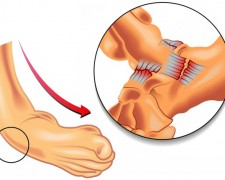 Растяжение связок стопы — чем грозит не лечение болезни