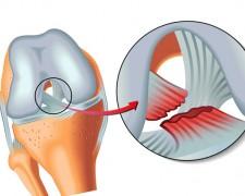 Причины разрыва передней крестообразной связки колена — возможные методы лечения