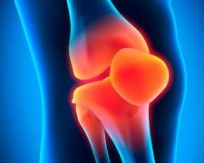 Характеристики болезней коленного сустава — как предотвратить заболевания