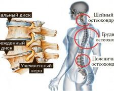 Основные упражнения при хондрозе — пошаговая инструкция