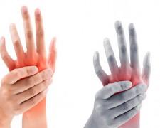 Причины и способы лечения онемения левой руки от локтя до пальцев