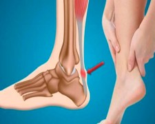 Лечение тендинита ахиллова сухожилия — когда нужна операция?