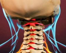 Симптомы и лечение защемления нерва в шейном отделе