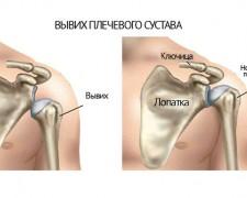 Вывих плеча — как оказать первую помощь, наложить повязку, виды, симптомы и лечение вывиха