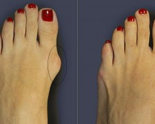 Косточка на большом пальце ноги — лечение в домашних условиях