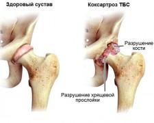 Коксартроз тазобедренного сустава: симптомы