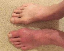 Отекают ноги в щиколотках: причины, чем лечить