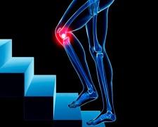 Возможные причины болевых ощущений в колене при ходьбе по лестнице — первая помощь