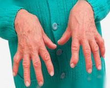 Ревматоидный полиартрит: что это за заболевание, его причины и лечение