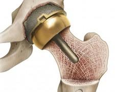 Что нельзя делать после операции по замене тазобедренного сустава