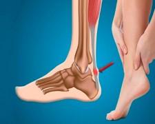 Особенности растяжения ахиллова сухожилия — первая помощь при травме