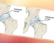 Лечение и профилактика остеоартроза