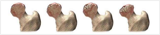 Асептический некроз головки бедренной кости