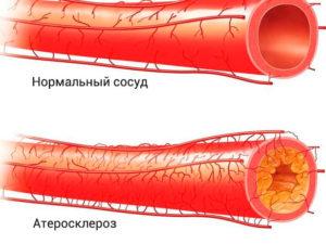 Атеросклероз (последняя стадия)