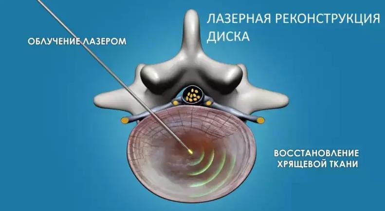 Внутрь диска через тонкую иглу вводится лазерное световое волокно, по которому диск облучается импульсным инфракрасным лазером