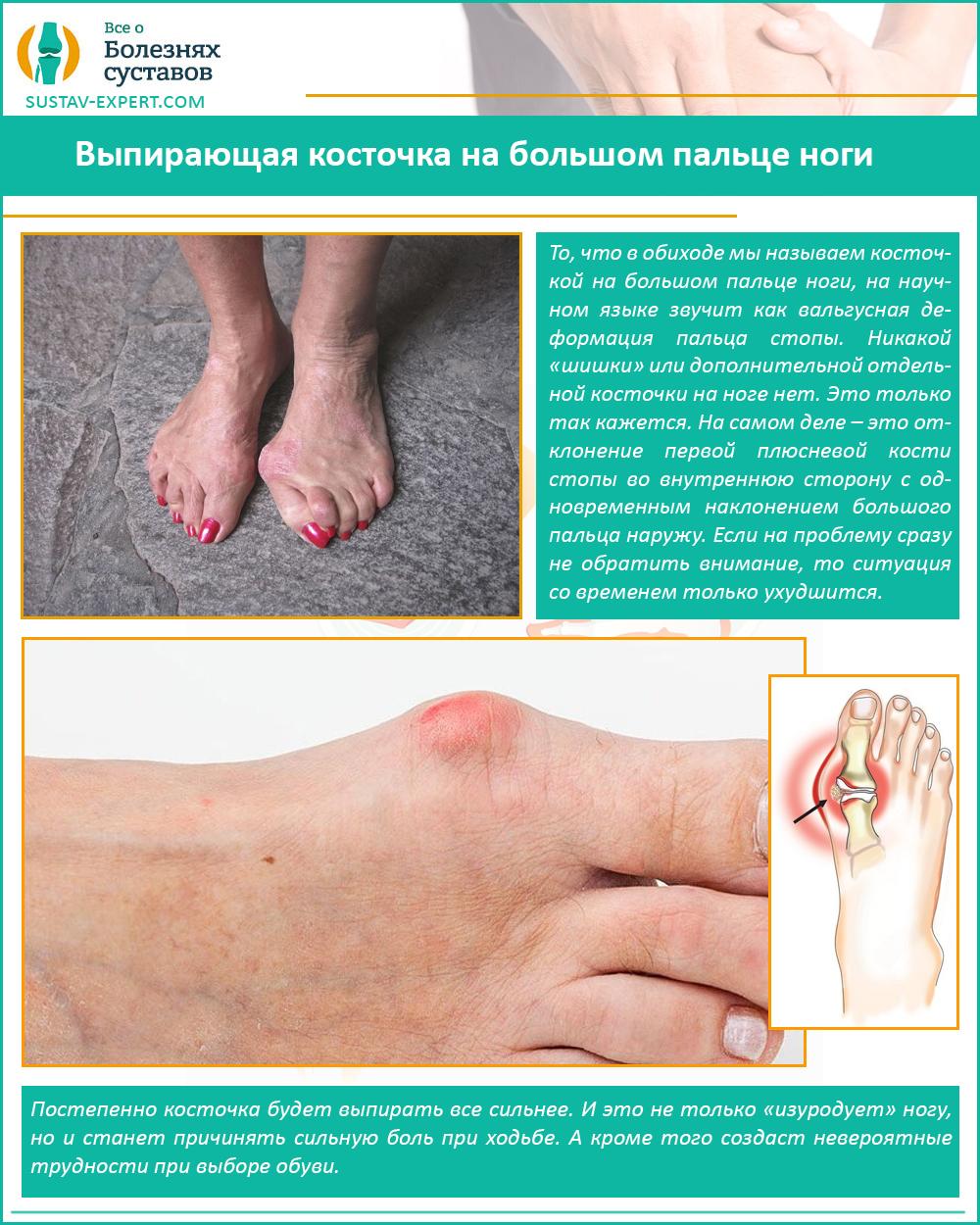 Выпирающая косточка на большом пальце ноги