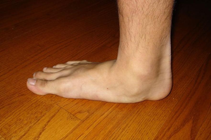 Деформация стопы, при которой ее продольный и поперечный своды опускаются