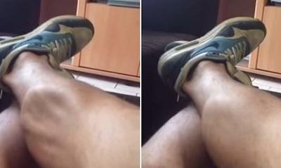 Если судороги в ногах не связаны с каким-либо заболеванием, используйте упражнения на растяжку