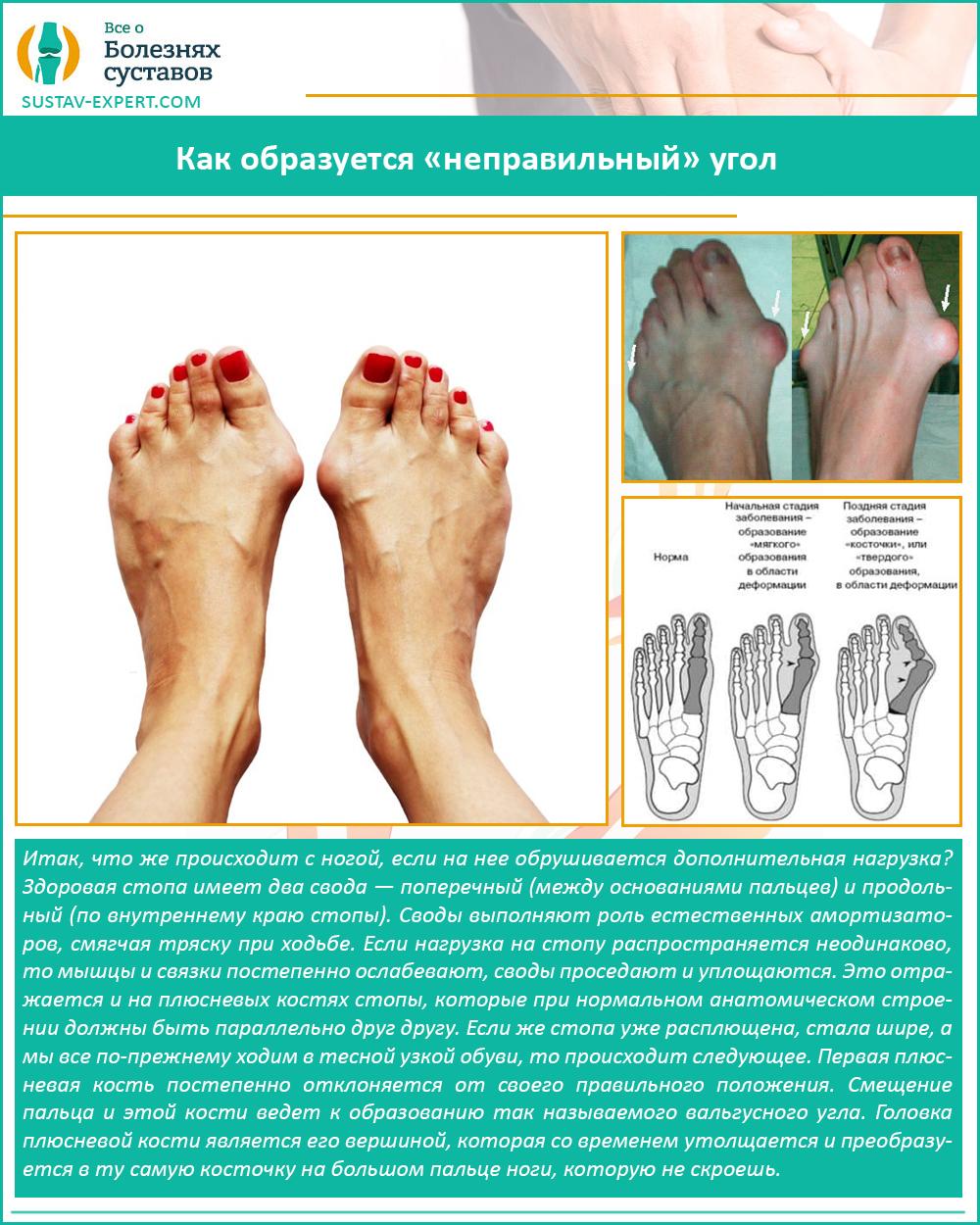 Как вылечить косточку на пальце ноги в домашних условиях thumbnail