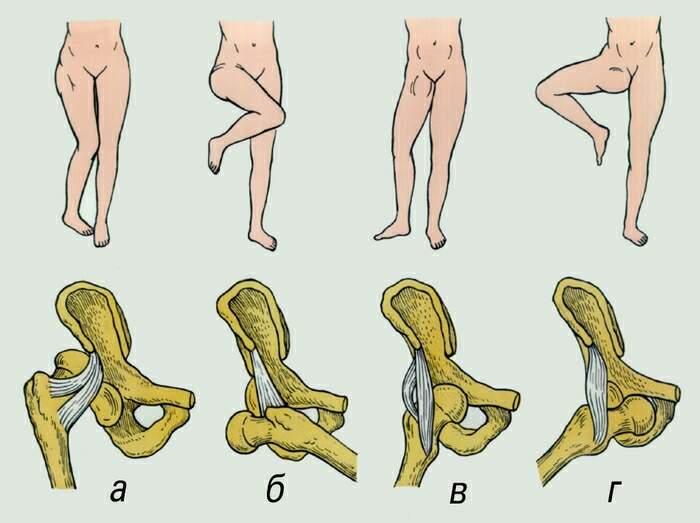 Клинические проявления вывиха тазобедрeнного сустава