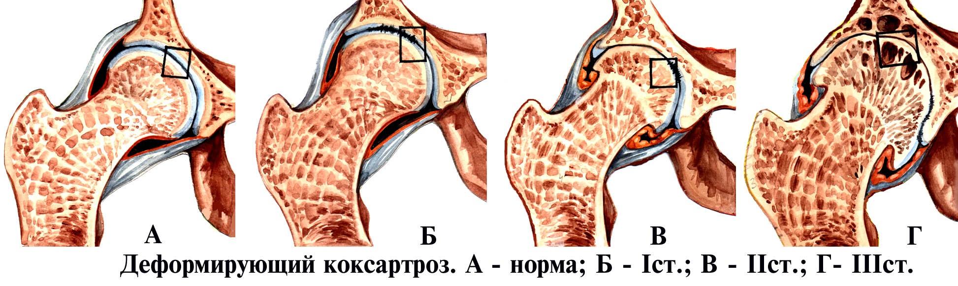 Коксартроз тазовых сочленений имеет несколько степеней развития