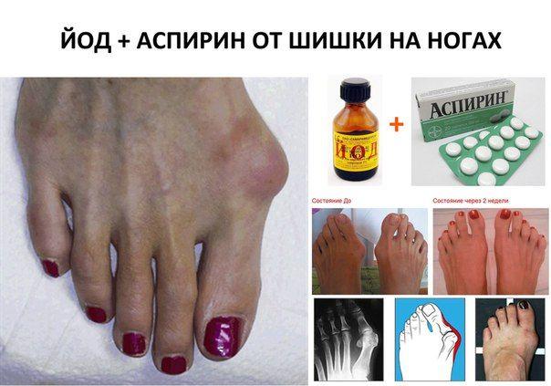 Лечение косточек на ногах йодом и аспирином