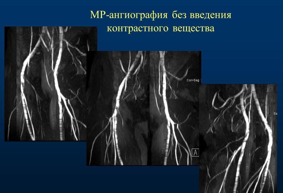 МР-ангиография сосудов