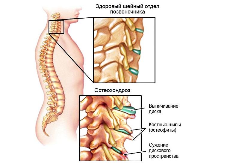 Остеохондроз – это комплекс дистрофических нарушений хрящей