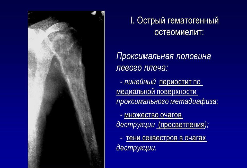 Острый гематогенный остеомиелит