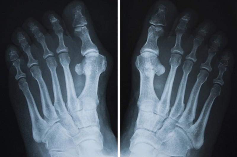 Очень часто при вальгусной деформации пальца стопы косточки появляются не только на больших пальцах ног, но и возле мизинца