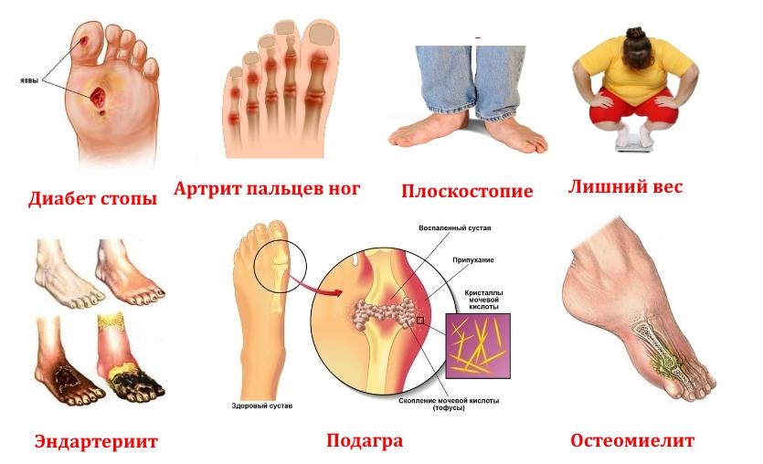 О каких заболеваниях может сигнализировать синдром