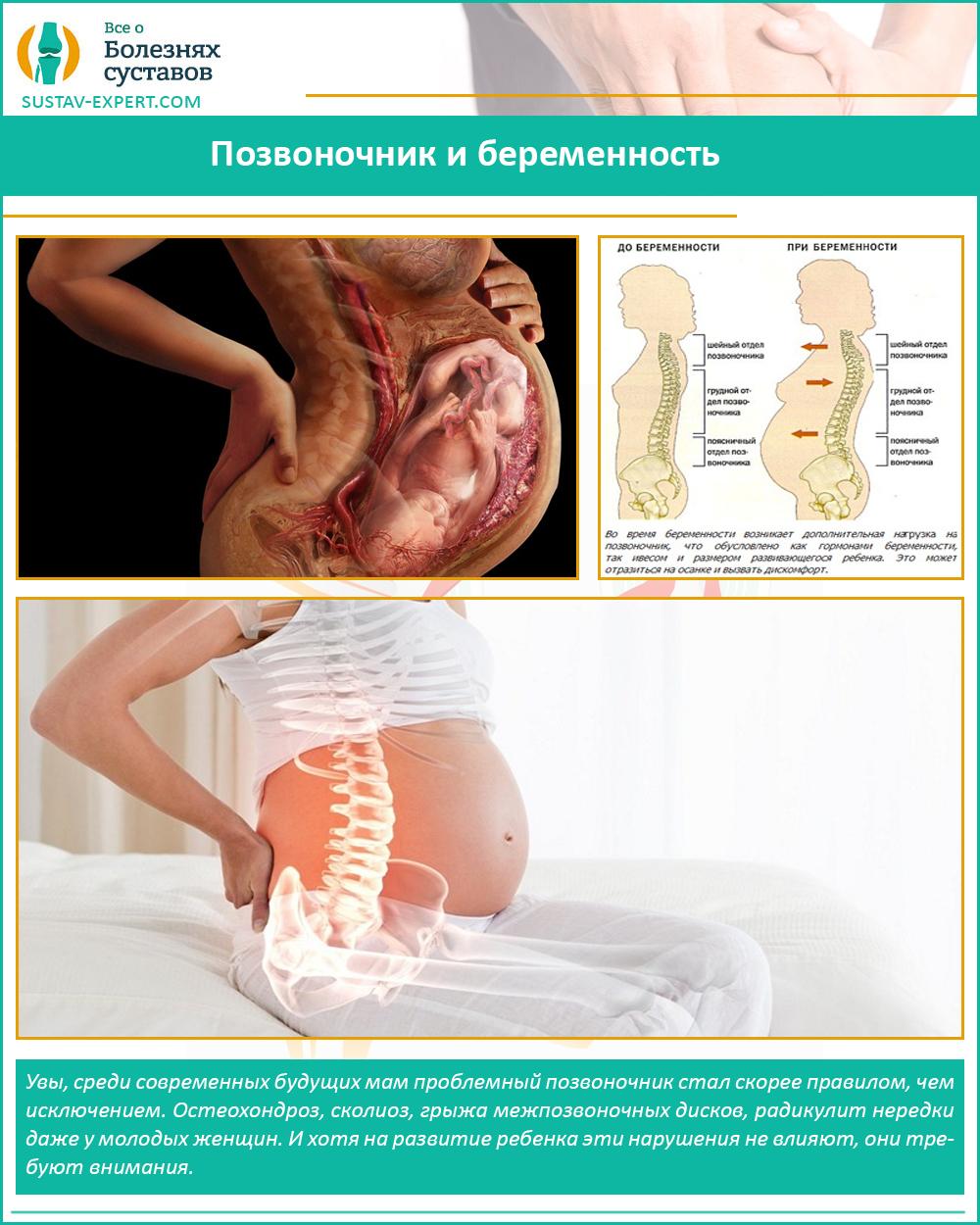Позвоночник и беременность