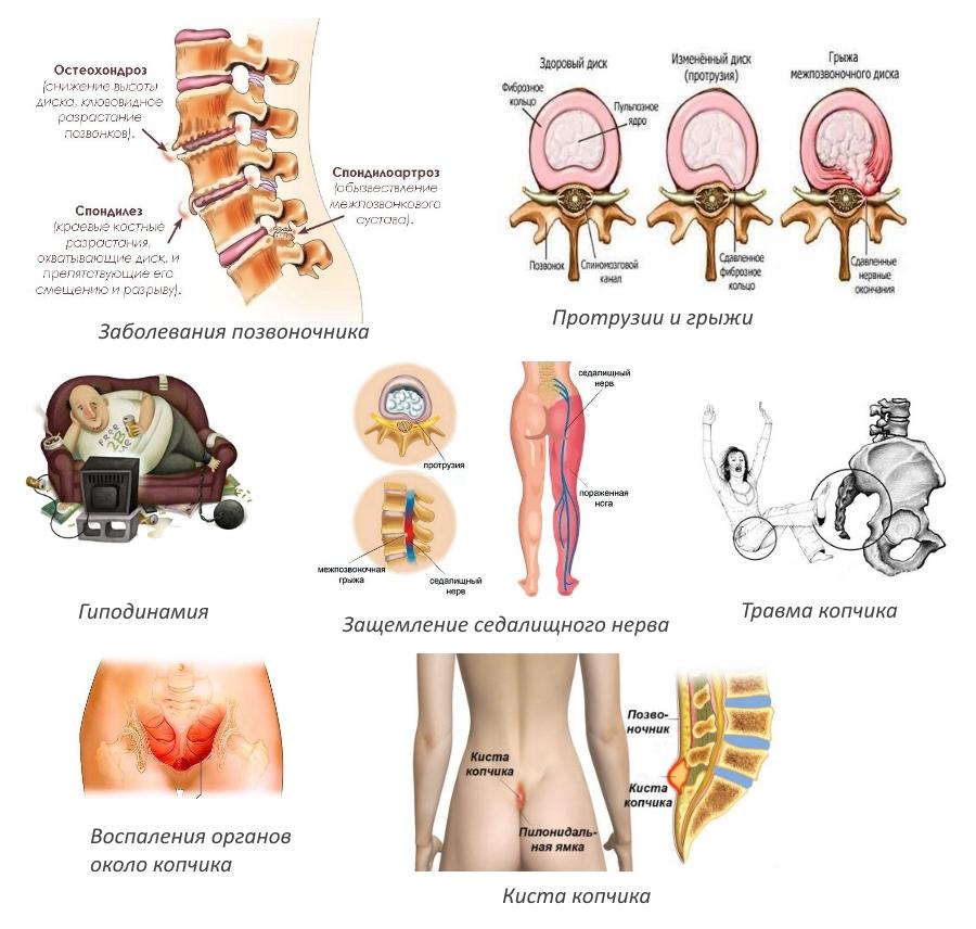 Причины болей в копчике при защемлениях