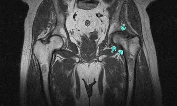 Самый распространенный бурсит – воспаление вертельной бурсы