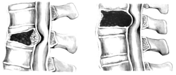 Сдавление спинного мозга лечение