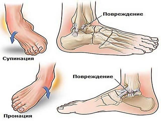Травмы стопы